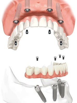 dental implant dentist ft worth