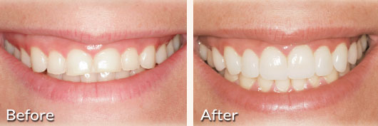 fort worth dental implants