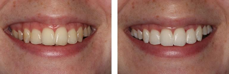 fort worth dental implants