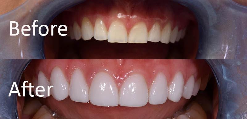 dental implant dentist ft worth